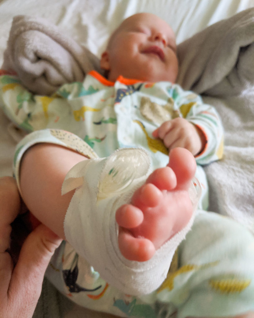 Things to Know About Newborn Babie: Fever
